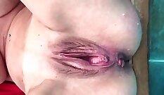 Burning fetish amputee skanks pussy and anus